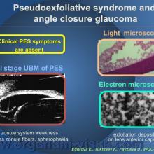 Egorova E., Tukhtaev K., Fayzieva U. Morphologic features of anterior lens capsule in the primary angle-closure glaucoma with pseudoexfoliative syndrome. 2012, февраль, 20.XXXIII World Ophthalmology Congress, Абу-Даби.