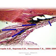 Лебедев О.И. Медикаментозные возможности активации увеосклерального оттока внутриглазной жидкости. Доклад на XV Всеросийской Школе офтальмолога (ВШО-2016, 11-12 марта, Снегири, Россия). Портал Орган зрения organum-visus.com