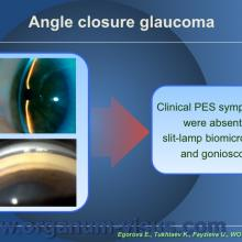 Egorova E., Tukhtaev K., Fayzieva U. Morphologic features of anterior lens capsule in the primary angle-closure glaucoma with pseudoexfoliative syndrome. 2012, февраль, 20. XXXIII World Ophthalmology Congress, Абу-Даби.