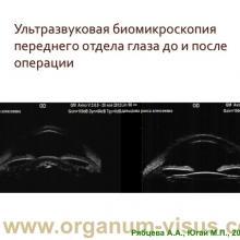 Рябцева А.А., Югай М.П. Изменение внутриглазного давления в ранние сроки после факоэмульсификации катаракты (МОНИКИ, 2014г.). Офтальмологический порта Орган зрения www.organum-visus.com